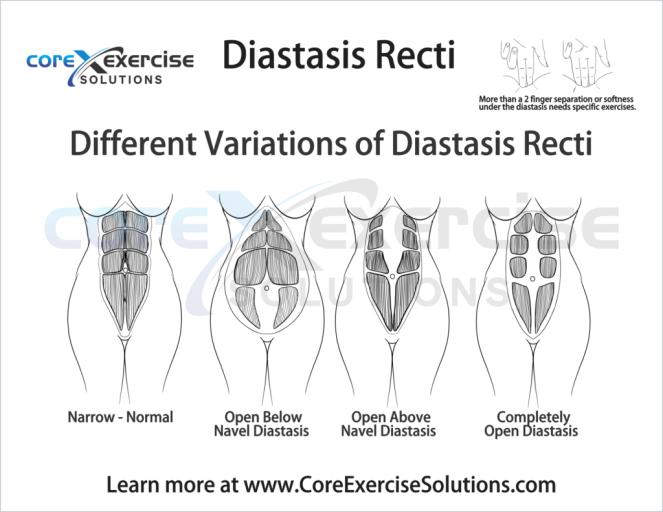 diastasis-2-1024x792